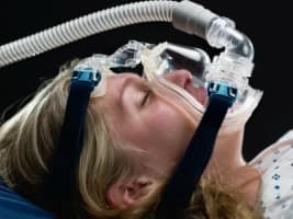 sleep apnea and insurance